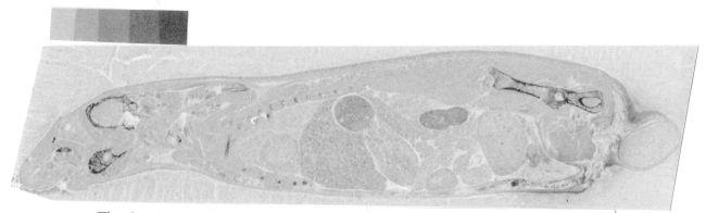 Sr-90 beta emission map - bone distribution